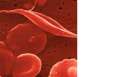 Srpasti eritrociti