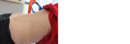 Klinična slika pacienta z lordozo v hrbtenici: začetni položaj: položaj<br /><br />   opora spredaj sonožno gib: simetrični izteg v ramenskem sklopu s pomočjo sling vrvi.